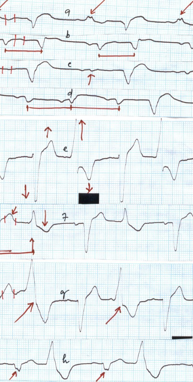The trace record of a patient from Ahamedabad shows abnormal electric behaviour after BY PASS SURGERY. Note the Negative and Positive defelection of the waves recorded.
