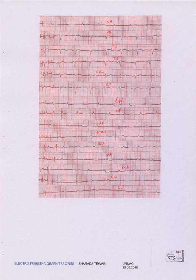 Electo Tridosha Graph recorded by the ETG Machine
