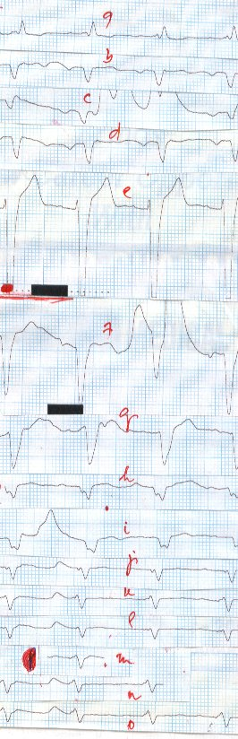 First Follow-up ETG AyurvedaScan , recorded on 20 / 08 /2011. See and observe the changes in Electrical Behaviour of the patient.