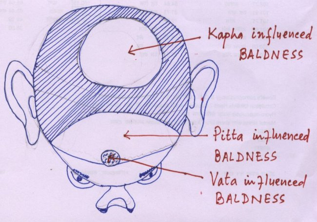 BALDNESS areas shown in the sketch for easy understading. Diagnosis of disorders either physical or mental becomes easy  in view of treatment and also for studies and confirmation of PRAKRUTI, TRIDOSHA, TRIDOSHA BHED , SAPTA DHATU  and many other features