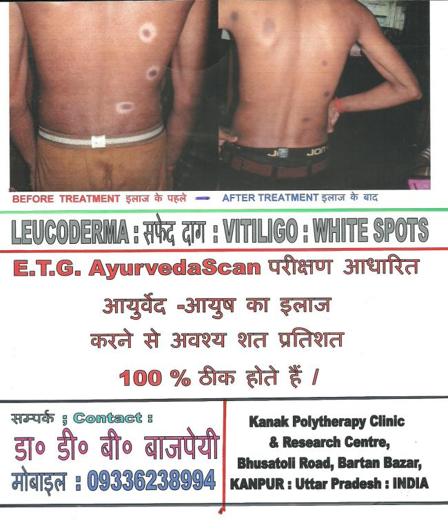 ALLOPATHIC MEDICINES: Use of Selected Remedies ; चुनी