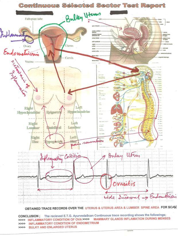 infertilitycase001