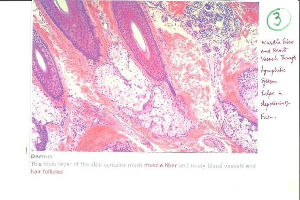 fibrosis001 002