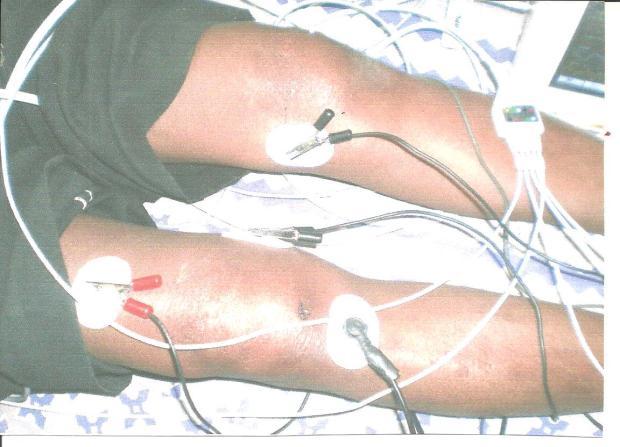 arthritis001 001